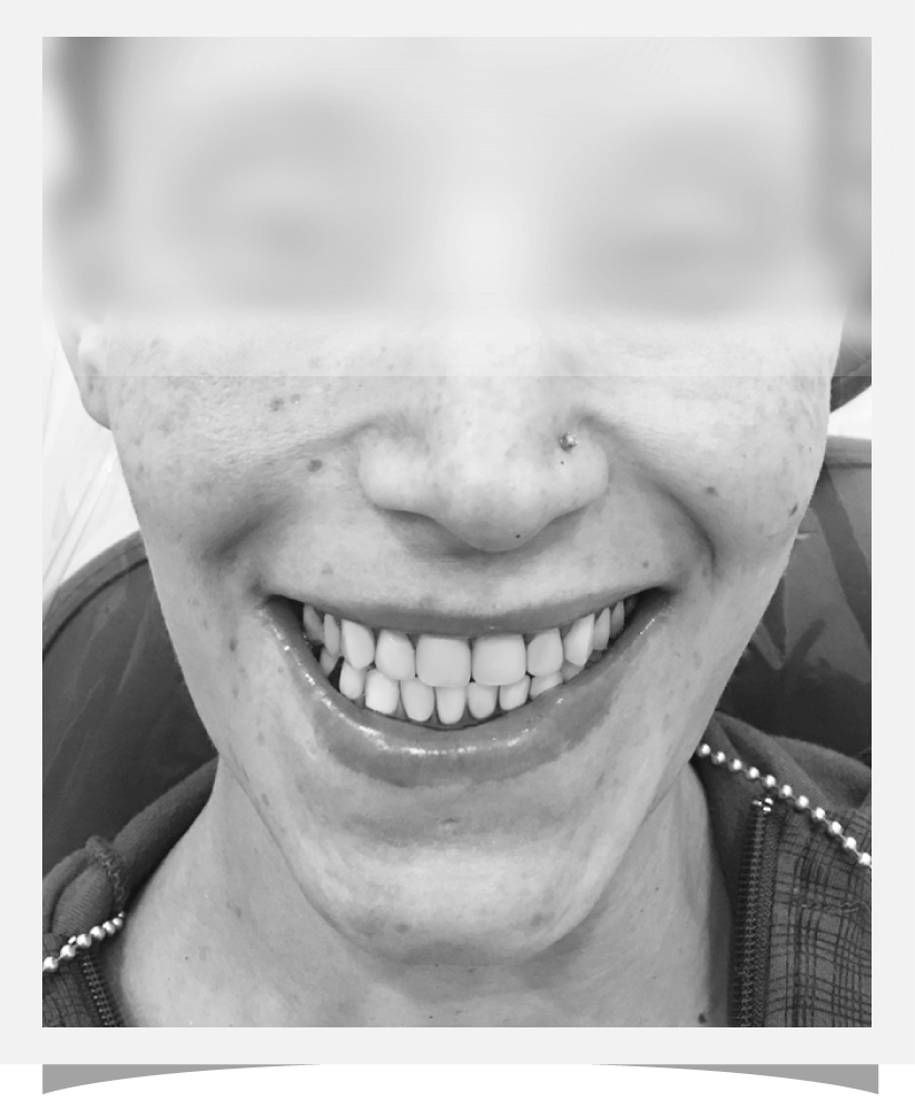 Cosmetic Dentistry - After surgery image